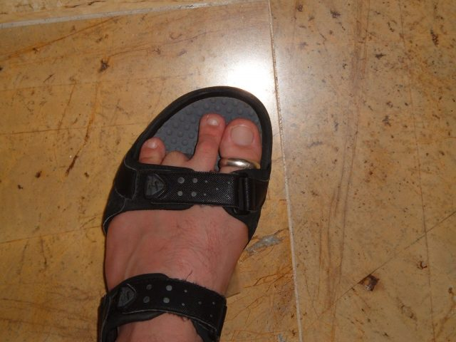 Podiatrist sued for chopping off wrong toe
