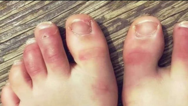 Whatever happened to COVID toes?