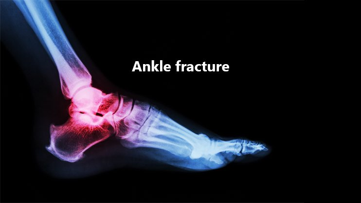20% Reduction in Ankle Fractures due to COVID 19 for Podiatrists