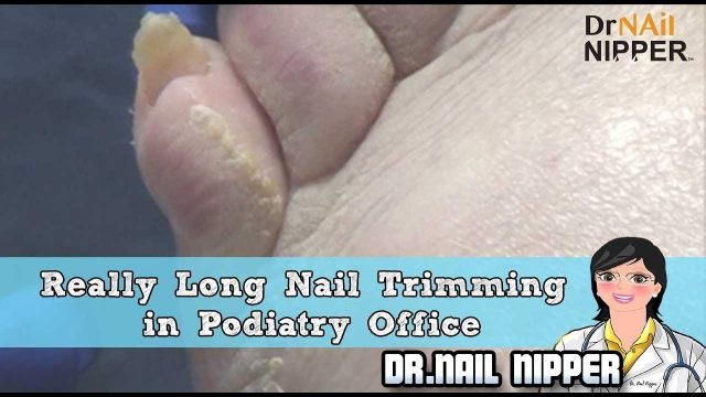 There is a Podiatrist named Dr. Nail Nipper