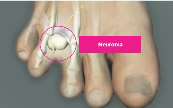 Why are Podiatrists still removing the nerve in Mortons Neuroma surgery?