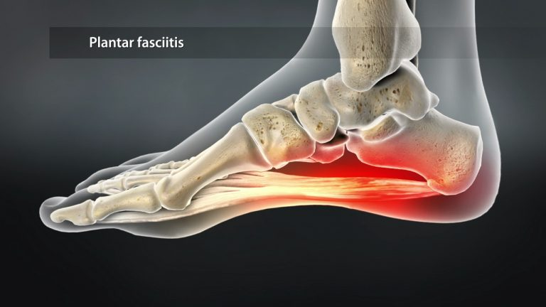 Plantar Fasciitis is now the most common foot disorder that physicians treat
